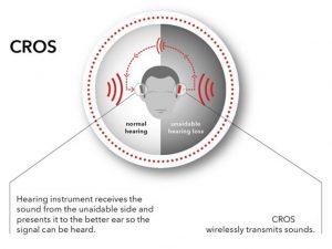 diagram-Cros-hearing-aide